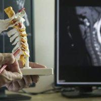 arthrodese cervicale anterieure chirurgien du rachis paris docteur antoine roul clinique drouot