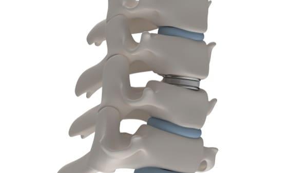 prothese discale cervicale chirurgien du rachis paris docteur antoine roul