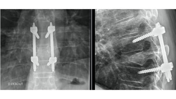 osteosynthese percutanee docteur antoine roul chirurgien rachis paris